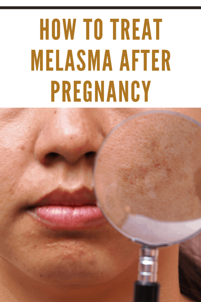 If the Melasma spots do not fade after trying over-the-counter and more natural remedies, your doctor can prescribe you a stronger cream.