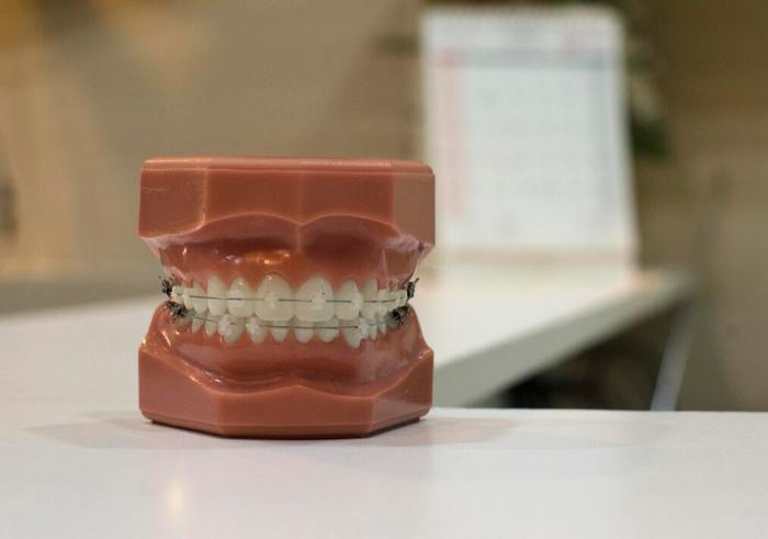 Everything to Know About Ceramic Braces