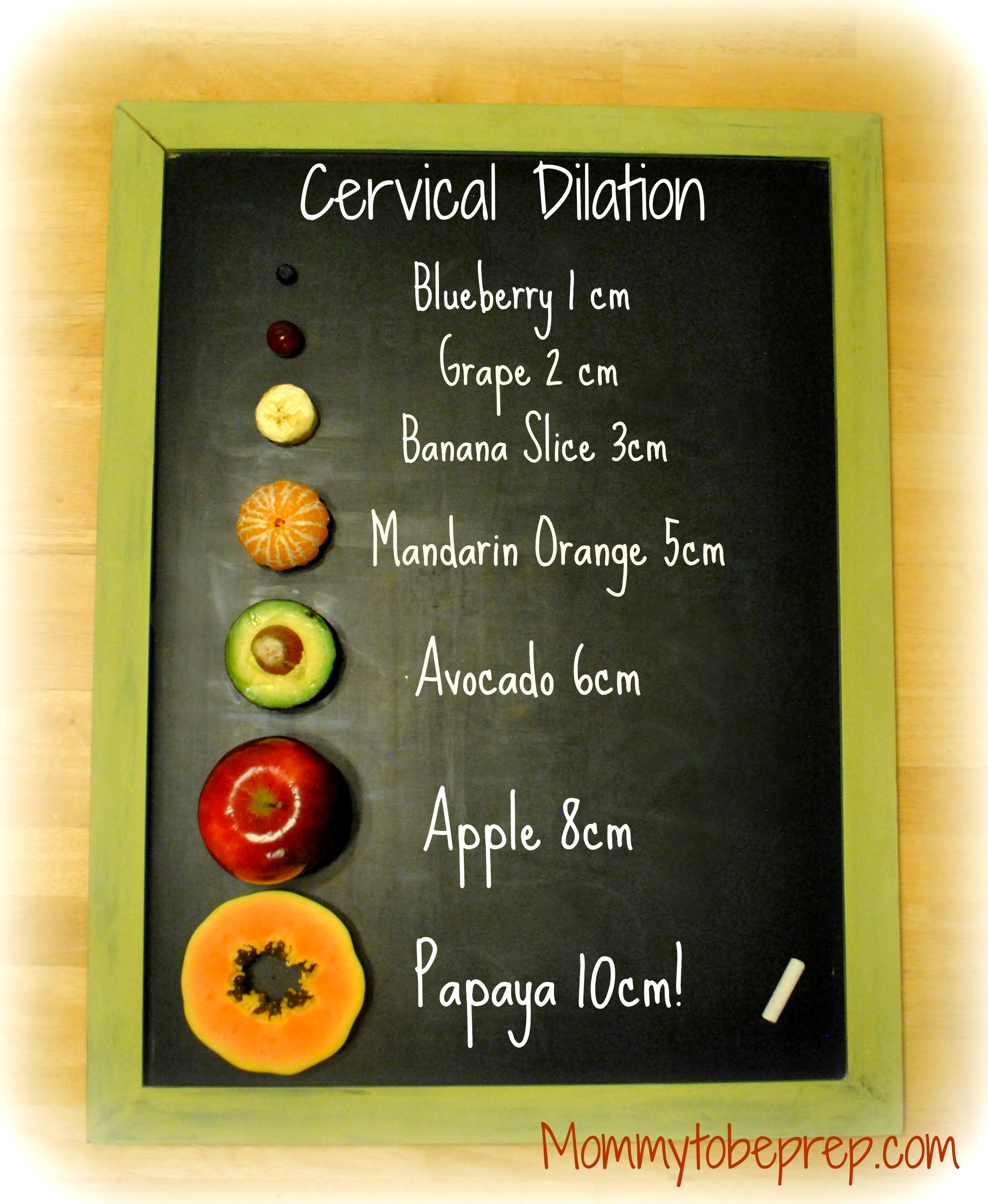Cervical Dilation Chart For The Visual Learner