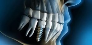 Mutuelle implant dentaire