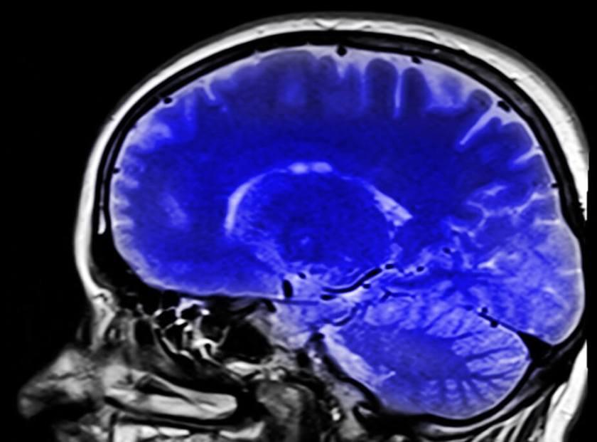 Régénérer son cerveau : des outils rapides et faciles par Mon Carré De Sable