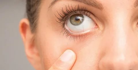 الإلمام بأعراض غمش العين وطرق علاجها
