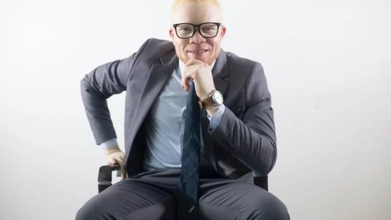 Tout savoir sur l'albinisme