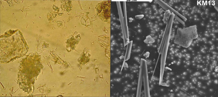 Report renews concern about asbestos-like minerals across