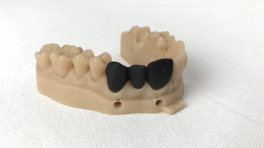 ponte dentale stampa 3d dentale sharebot monza