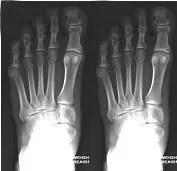Daniel's Latest X-Rays