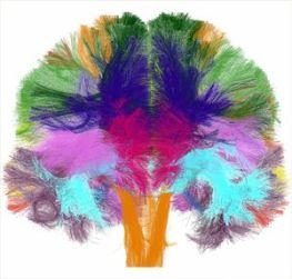 cerveaucouleur2