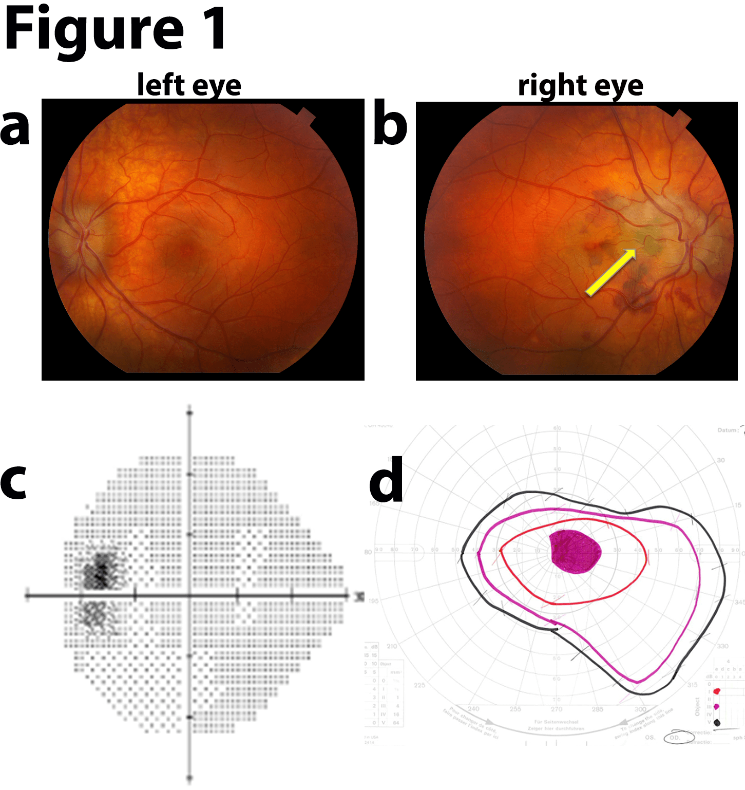 hight resolution of within a few months vision returned in the right eye to 20 40 with significant improvement of cecocentral scotoma and resolution of the subretinal fluid