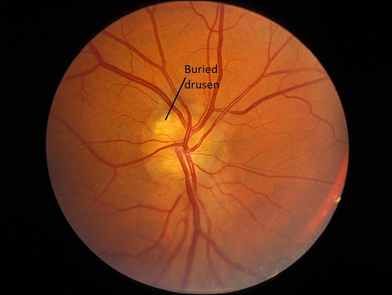 Moran CORE   Optic Nerve