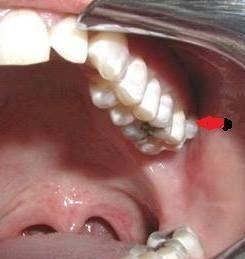 CAT izquierdo por compresión de la mandíbula al llevarla a la derecha del paciente