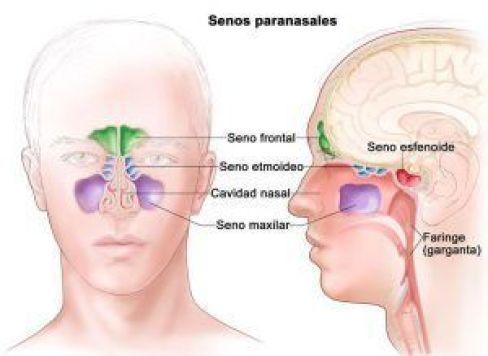 Esquema de senos paranasales normales diferenciados con distintos colores