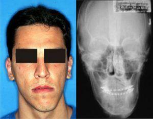 Cara y radiografía de frente de un paciente que muestra las asimetrías y relaciona la estética facial