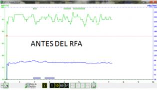 Gráfica del pulsioximetro antes del uso de rfa y cambio postural