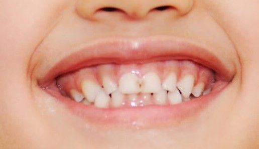 Sonrisa gingival en niño, caries, indica tardío edad de inicio de ortodoncia
