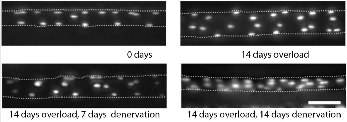 Micrographs of same EDL muscle fiber over time following the induction of hypertrophy (top row) and the subsequent induction of atrophy (bottom row).