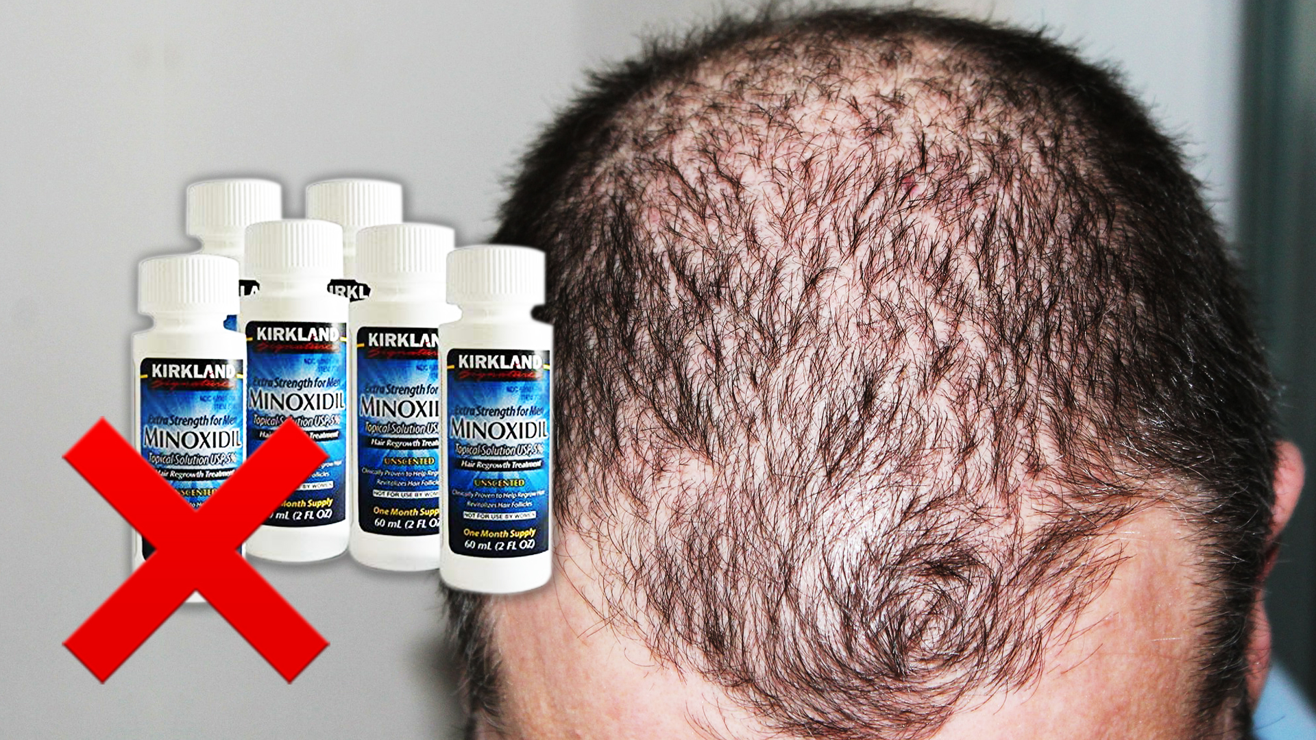 6 bottles of Kirkland Minoxidil beside balding man's head