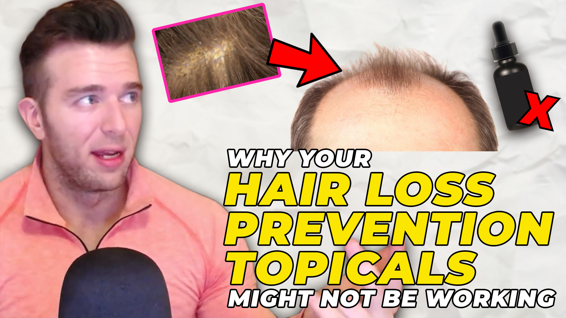 Derek from MorePlatesMoreDates.com explaining how topical hair loss treatments can't be absorbed properly if there is sebum accumulated on the scalp