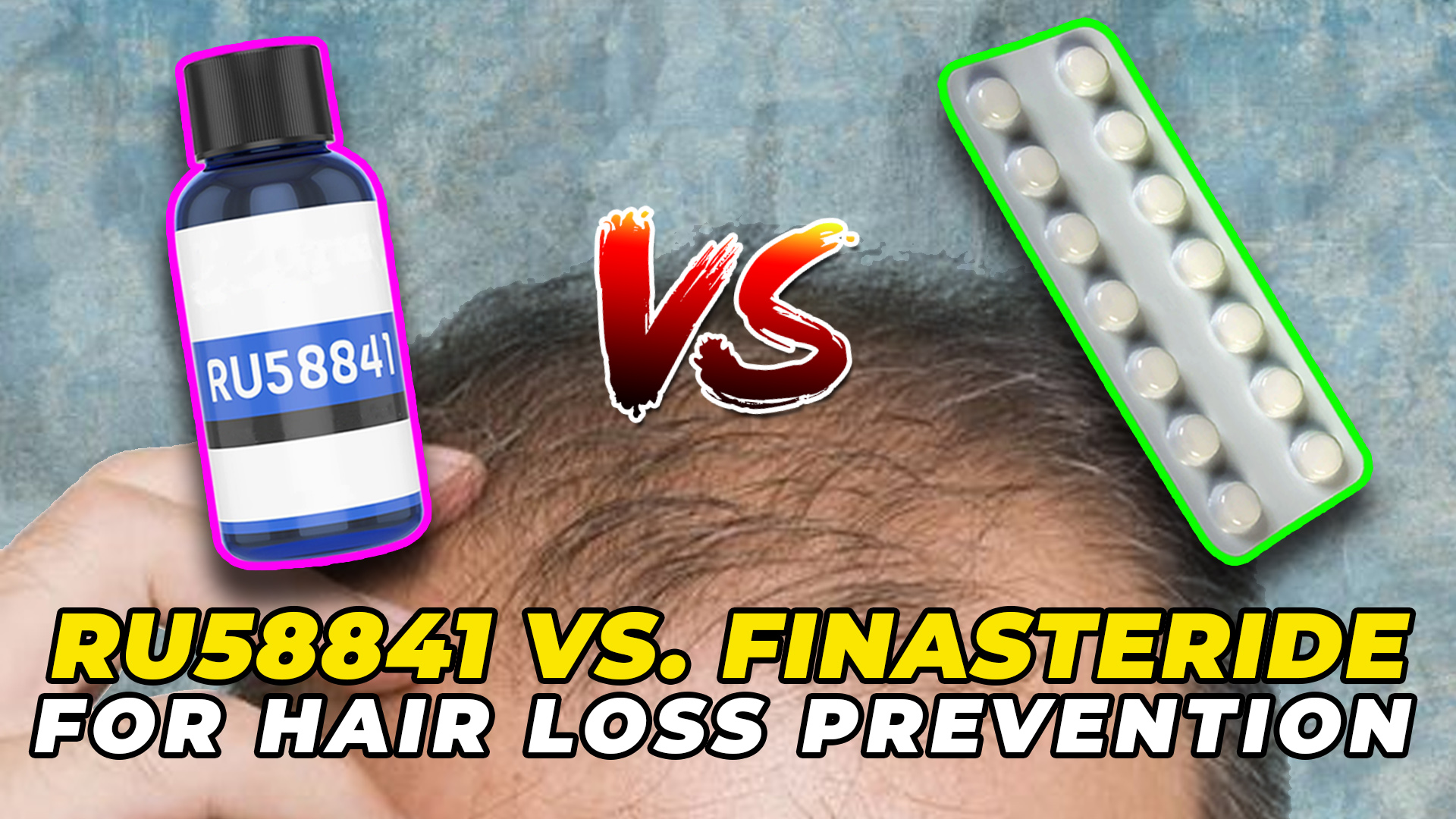 RU58841 Vs. Finasteride For Hair Loss Prevention