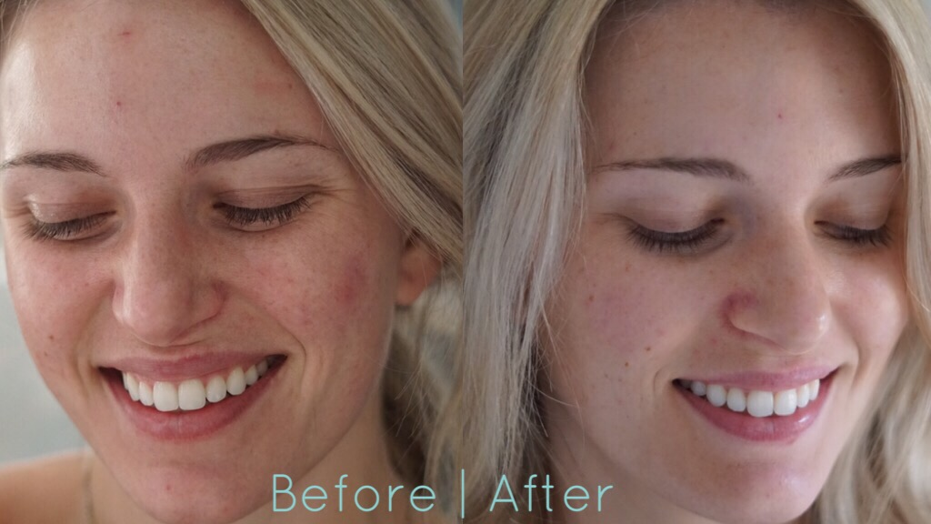 Neutrogena Light Therapy Acne Mask Review Morgan Bullard