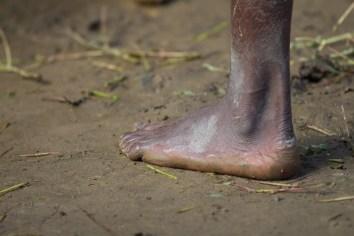 La chaussure est facultative à Madagascar, c'est un coût que tous ne peuvent pas supporter et la priorité est plutôt de manger