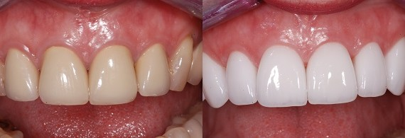 Visit Dental Clinic For Teeth Whitening Or Dental Implants Morgan Heights Dental Centre South Surrey Implant