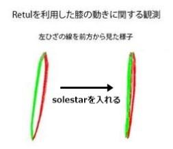 あらゆる悩みを解決する魔法のインソール「Solestar Kontrol」インプレッション。 コントロール 膝の故障・痛み解消