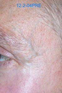 eye vein