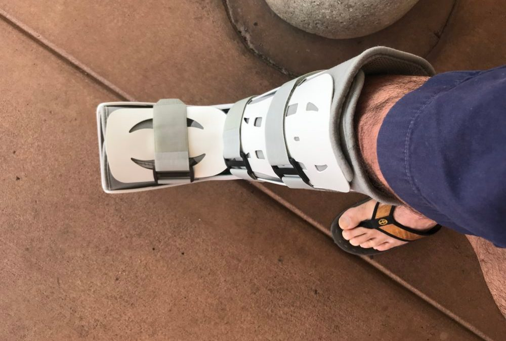 Broken Foot: What's Now, NOT What's Next, Matters