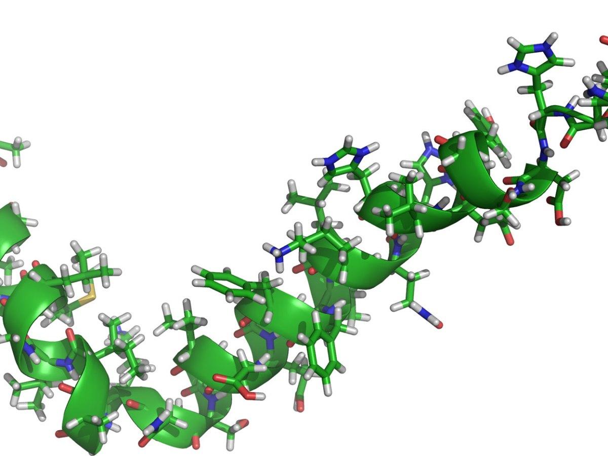 Бета-амилоид (Aβ42).