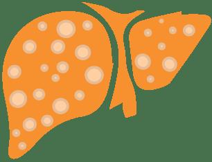 28 июля: Всемирный день борьбы с гепатитом