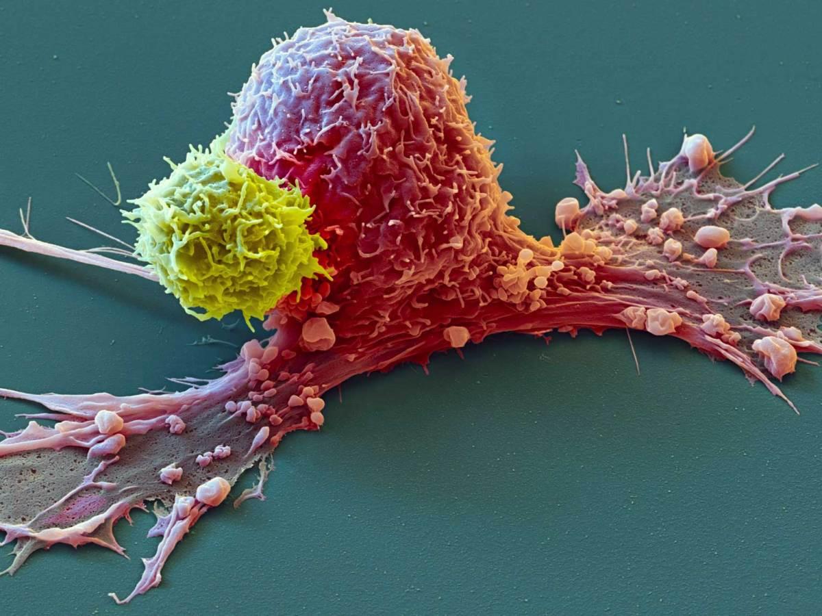 cancer - Безопасность ингибиторов иммунных контрольных точек: есть вопросы