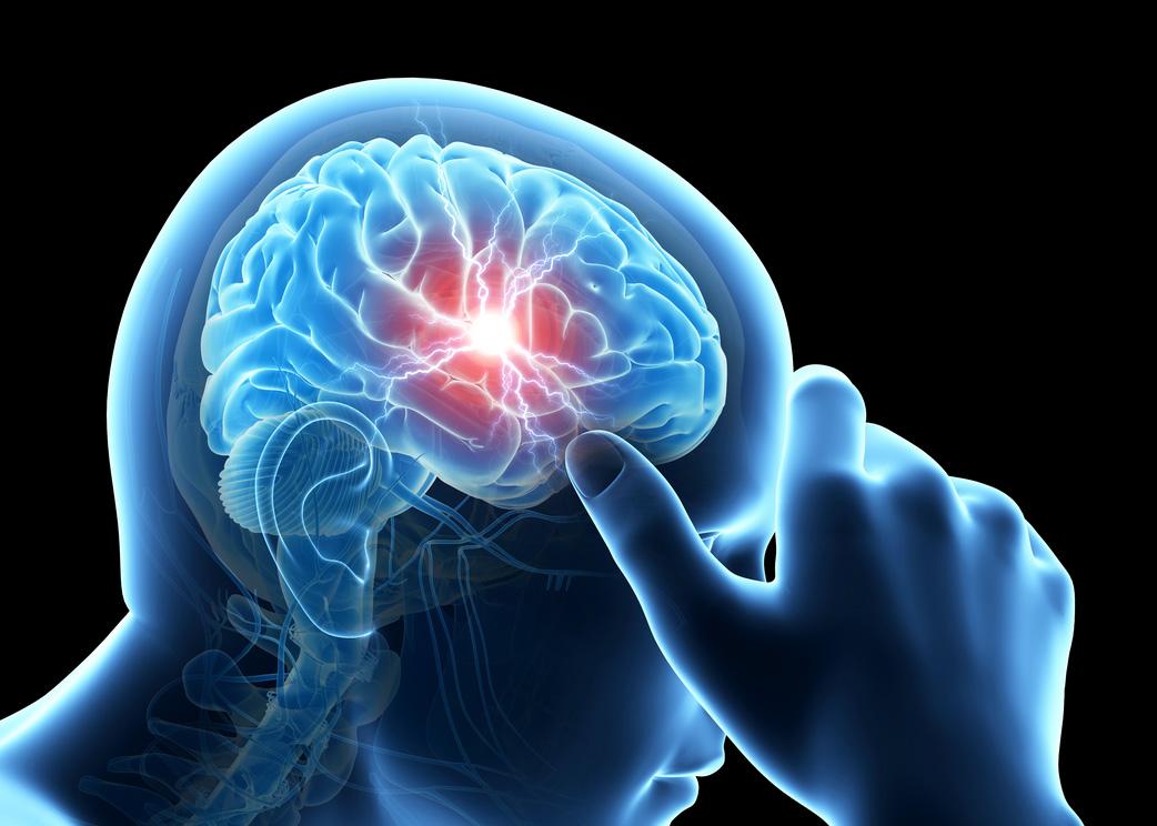 Галканезумаб: для профилактики мигрени
