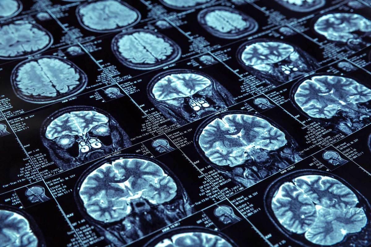 Ланабецестат против болезни Альцгеймера: ничего не получилось