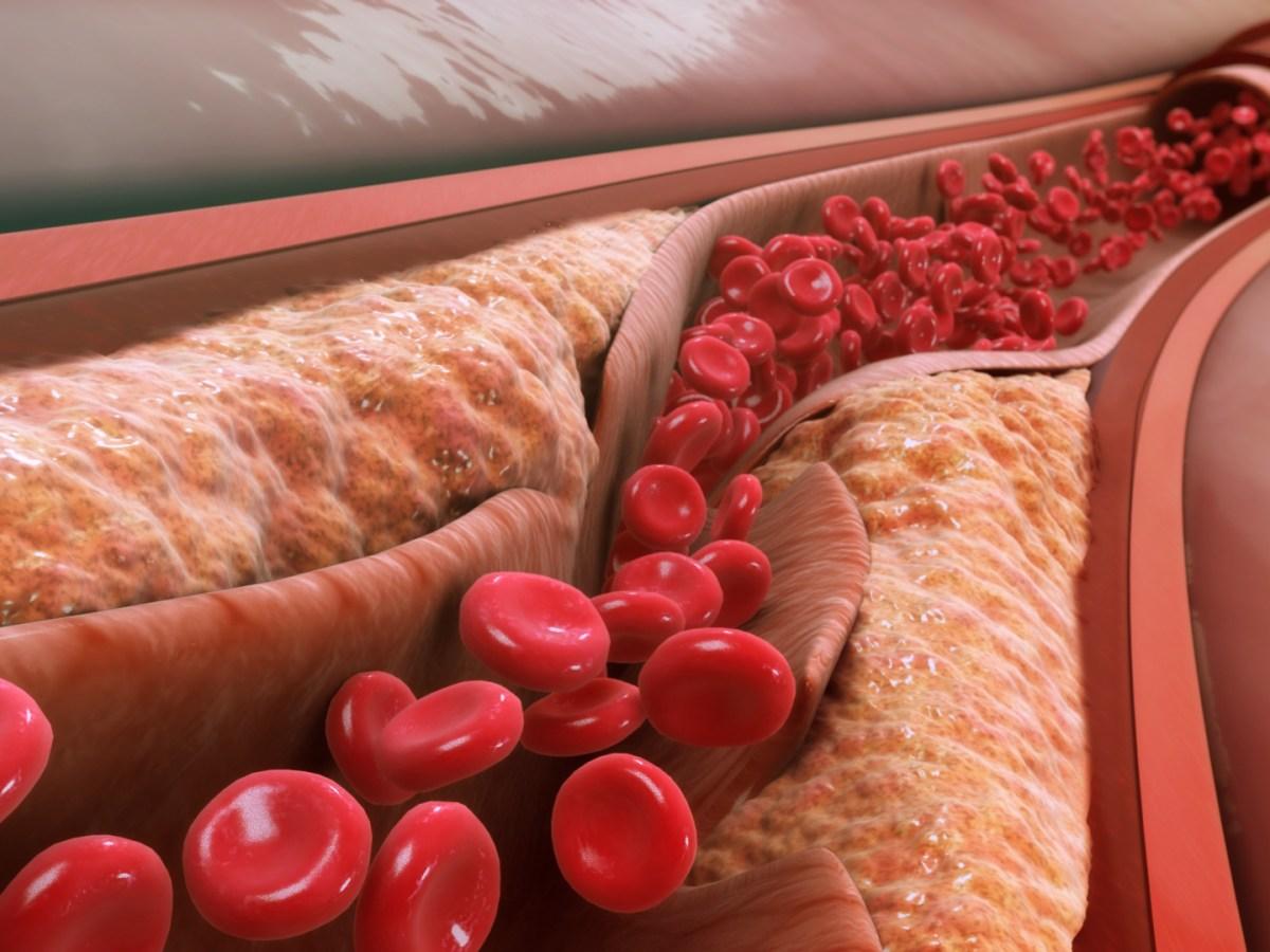 atherosclerosis - Бемпедоевая кислота: новейшее средство для лечения атеросклероза