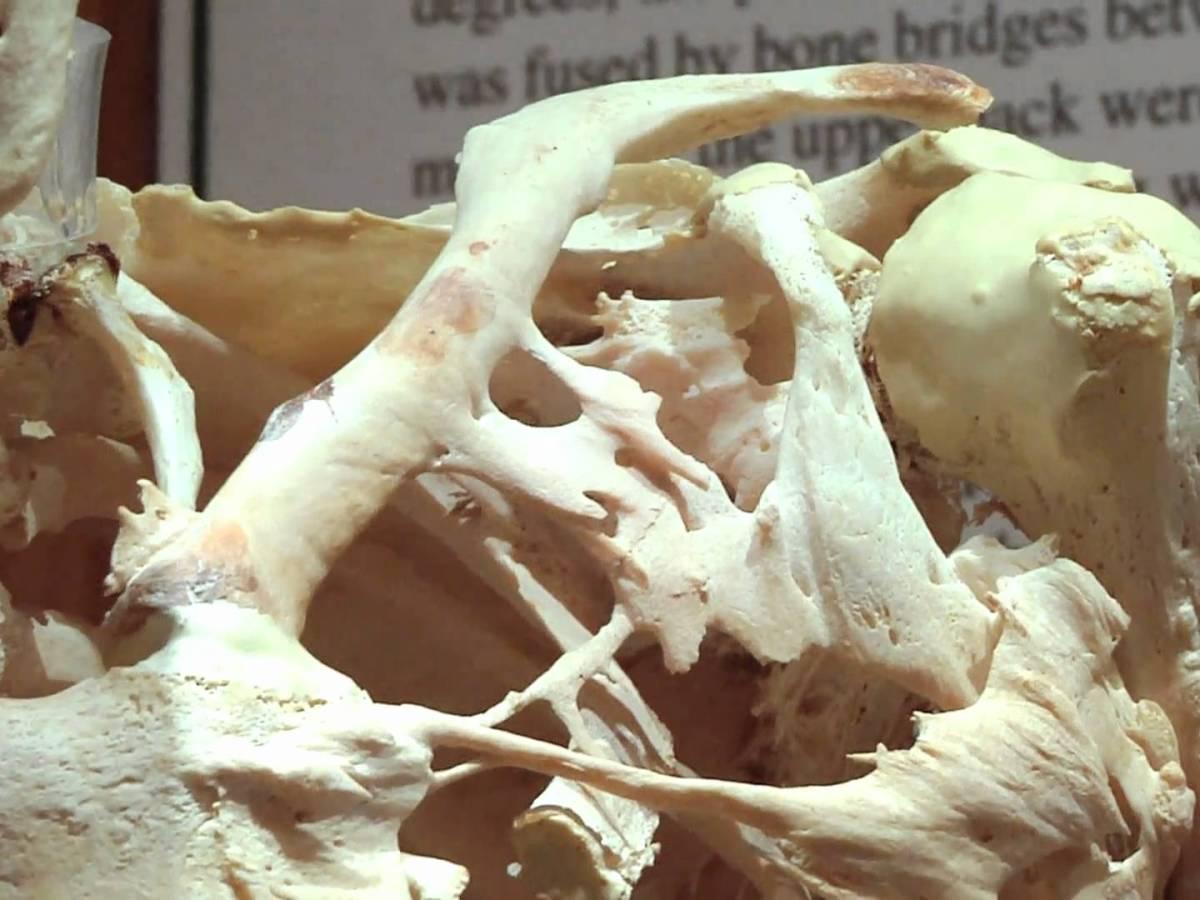 fibrodysplasia ossificans progressiva - Ipsen купит Clementia Pharmaceuticals
