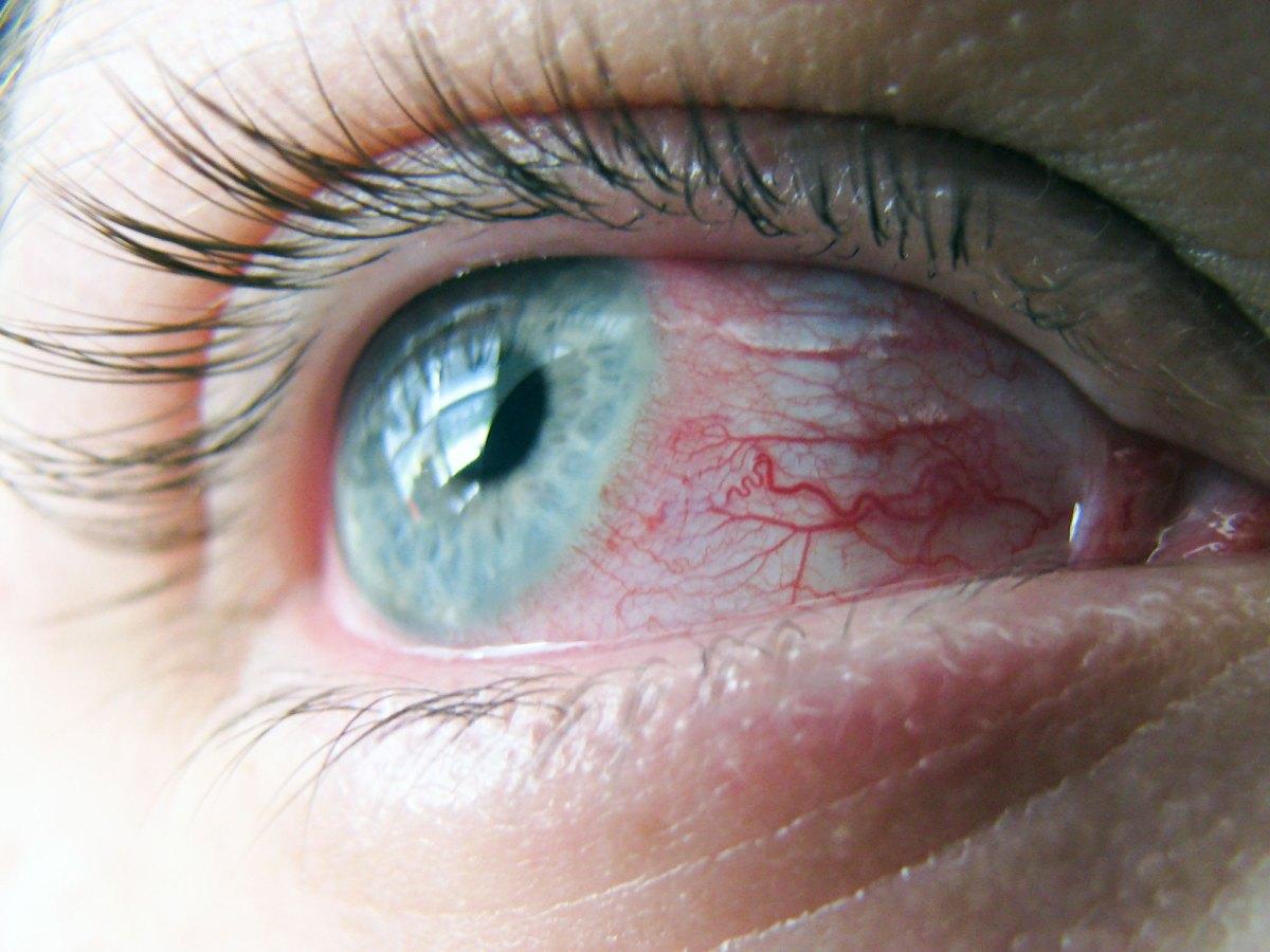 Репроксалап: новейшее лечение аллергического конъюнктивита