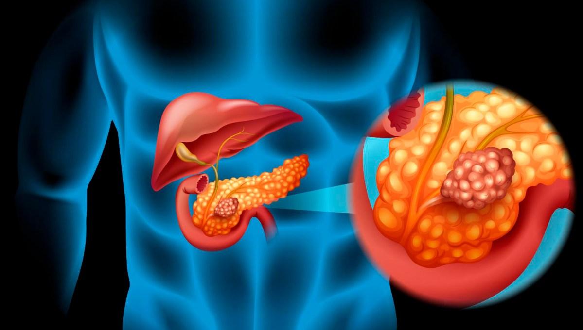 «Линпарза» сработал на специфическом раке поджелудочной железы