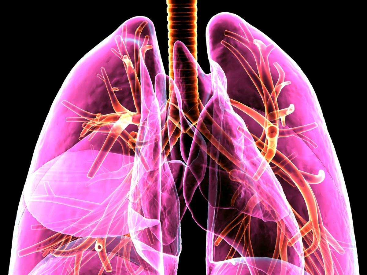 lungs - «Имфинзи» пробился в терапии запущенного мелкоклеточного рака легкого