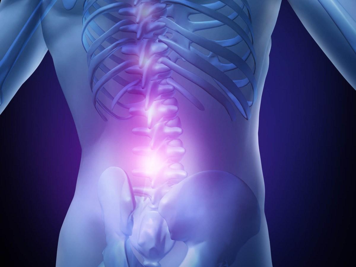low back pain - Лечение боли в спине: одной инъекции хватит на три года