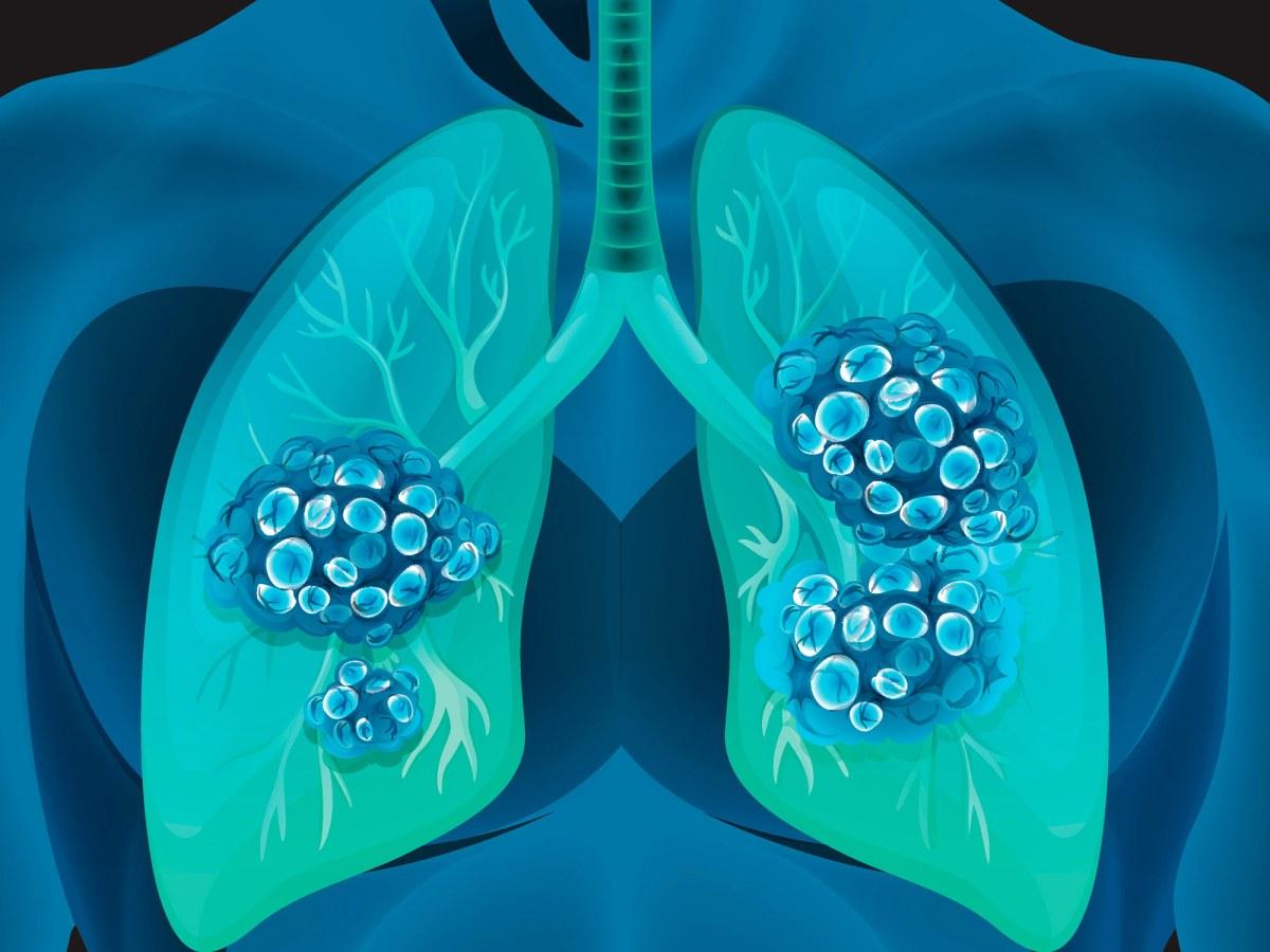 Бемцентиниб: свежее открытие таргетной онкотерапии