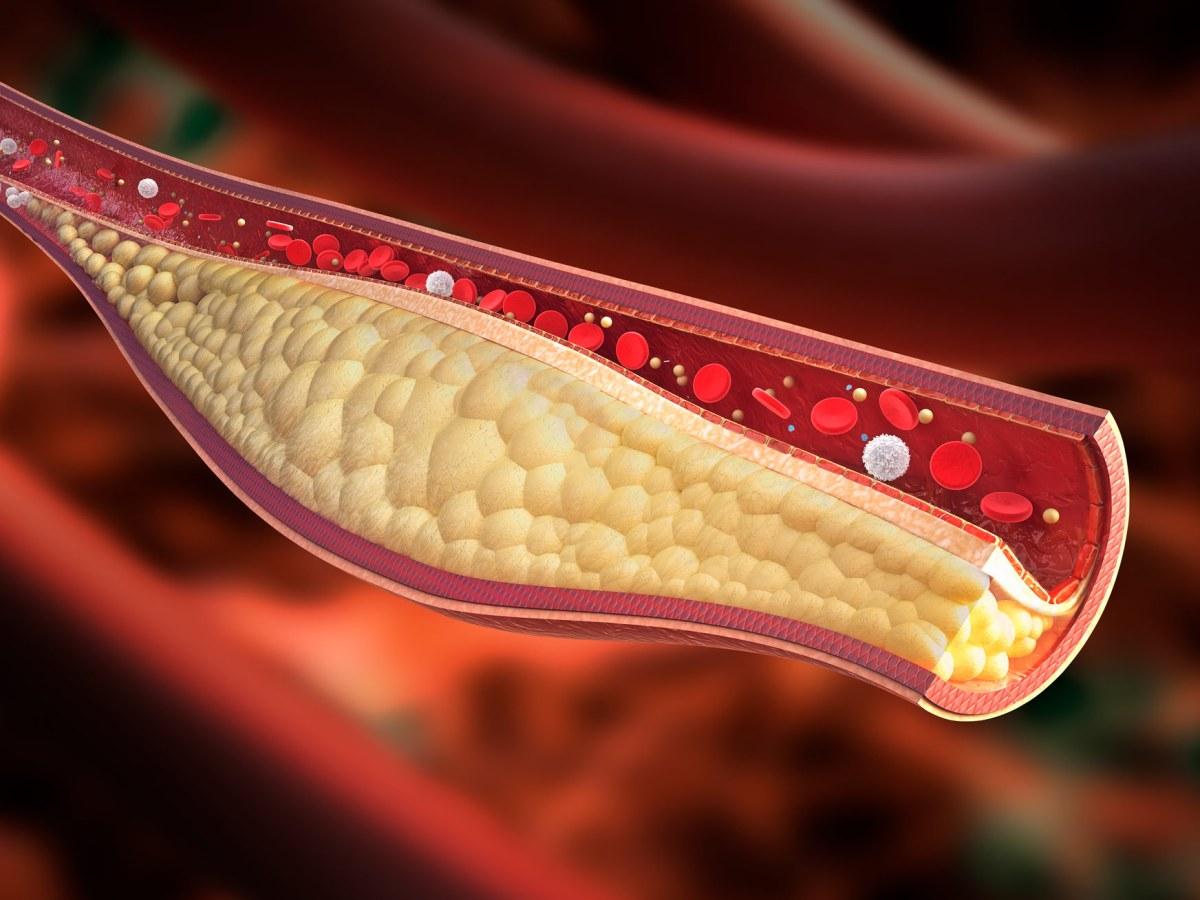 atherosclerotic plaque - Novartis завладела крутым лекарством против «плохого» холестерина