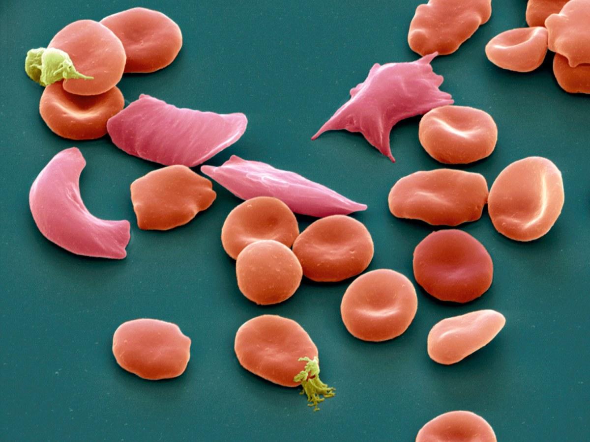 «Адаквио»: новое лекарство для терапии серповидно-клеточной болезни