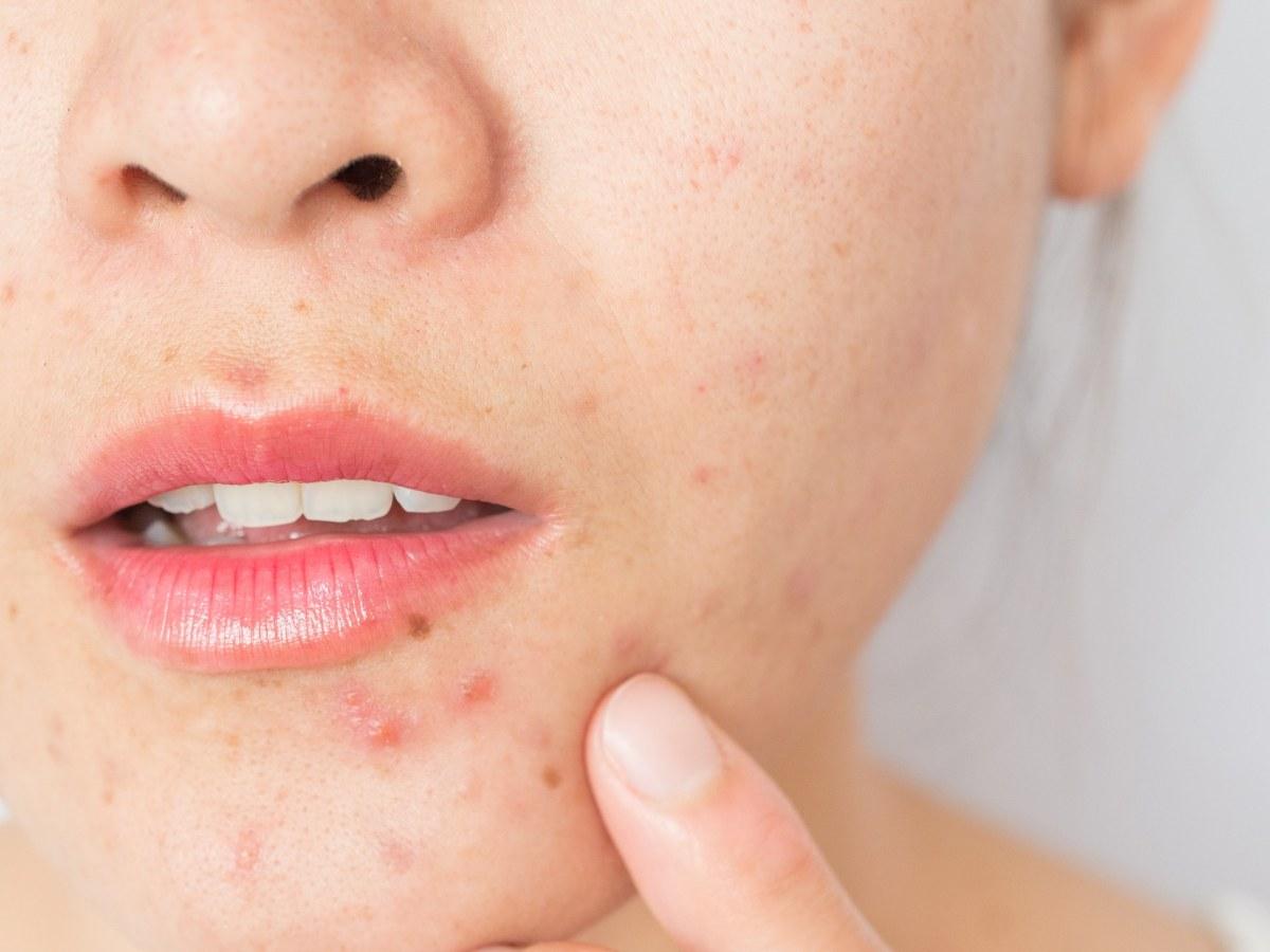 acne - «Амзик»: новый способ лечения акне