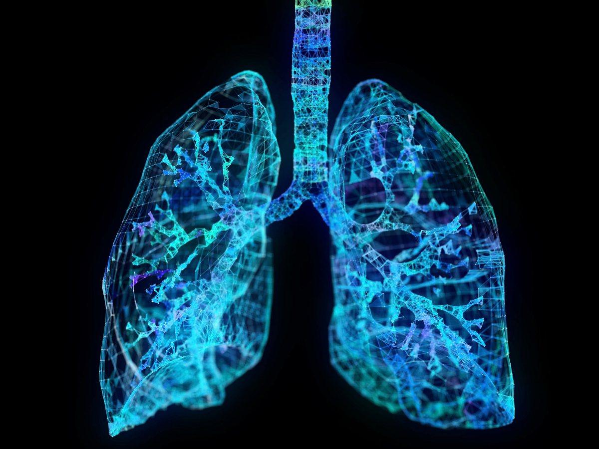 lung cancer - Мелкоклеточный рак легкого: да поможет иммуноонкология