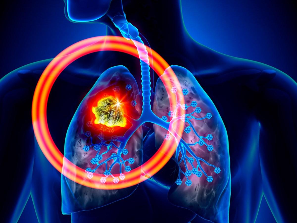 «Имфинзи»: первоочередная иммунотерапия мелкоклеточного рака легкого