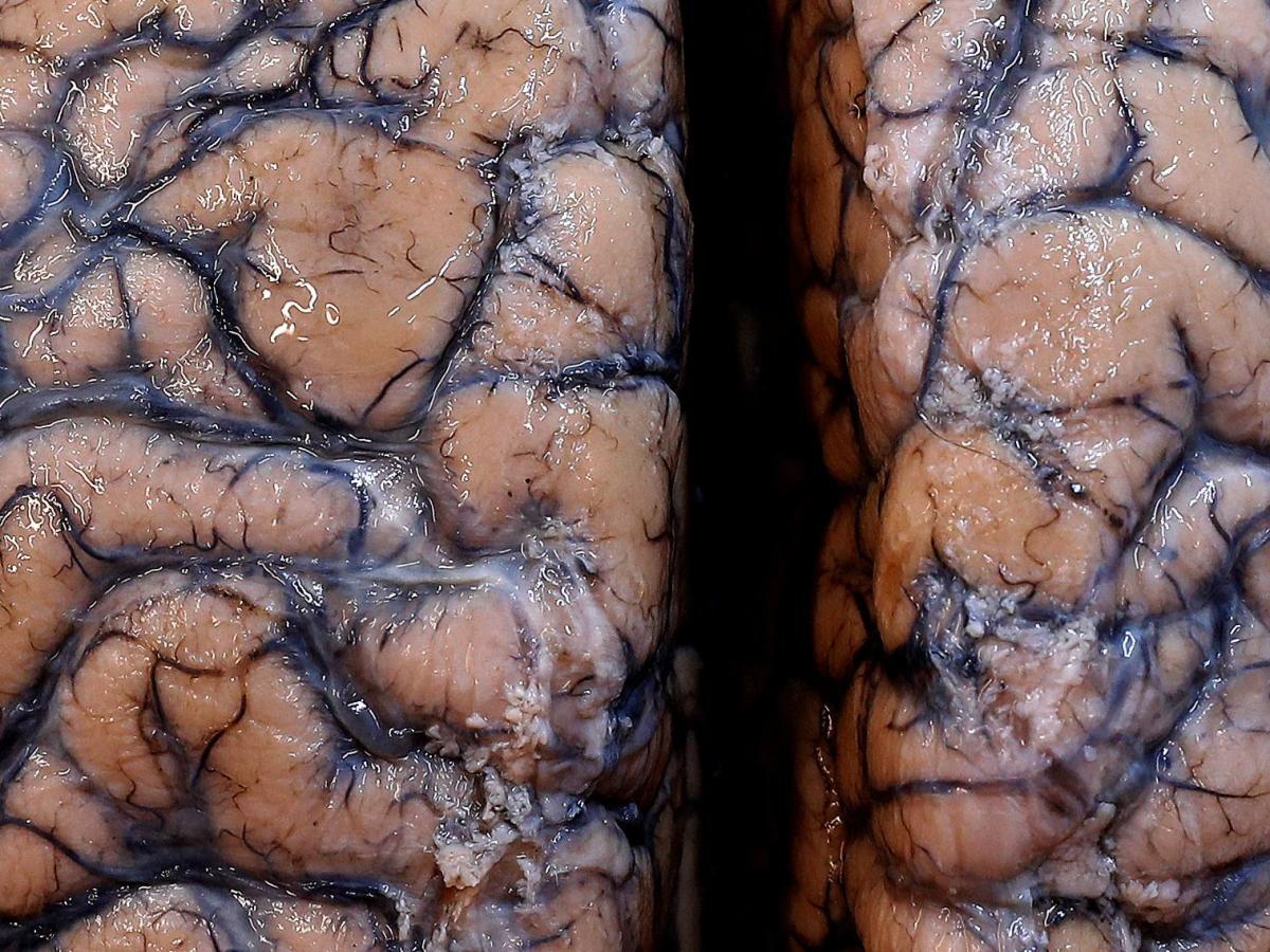 Боковой амиотрофический склероз: стволовые клетки не помогли