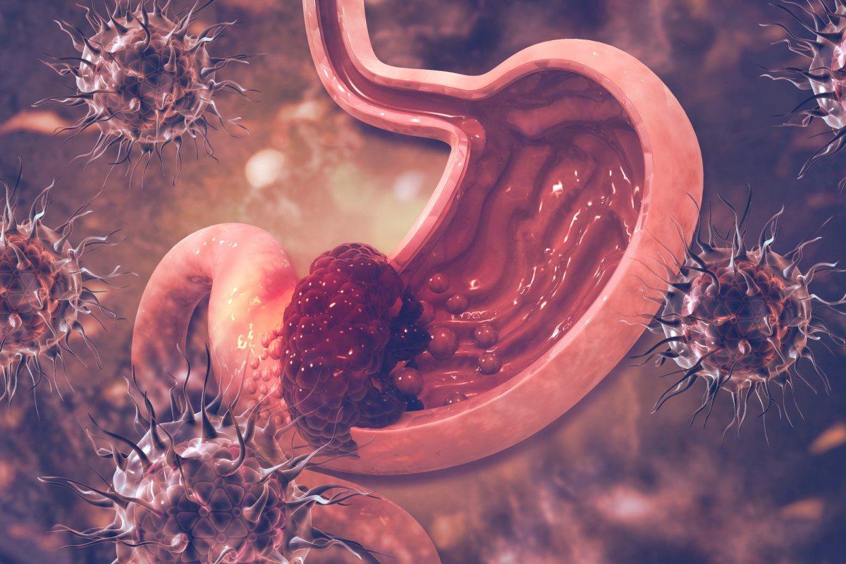 Бемаритузумаб: прорыв в лечении рака желудка