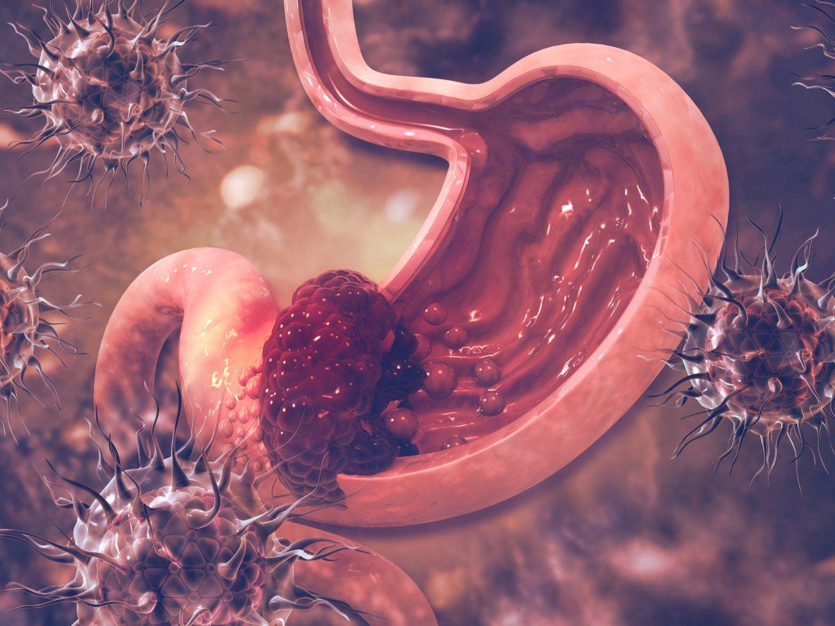gastric cancer - Бемаритузумаб: прорыв в лечении рака желудка