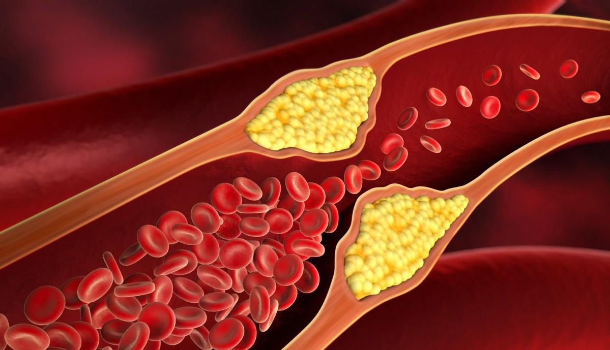«Леквио»: новейшее лекарство от «очень плохого» холестерина