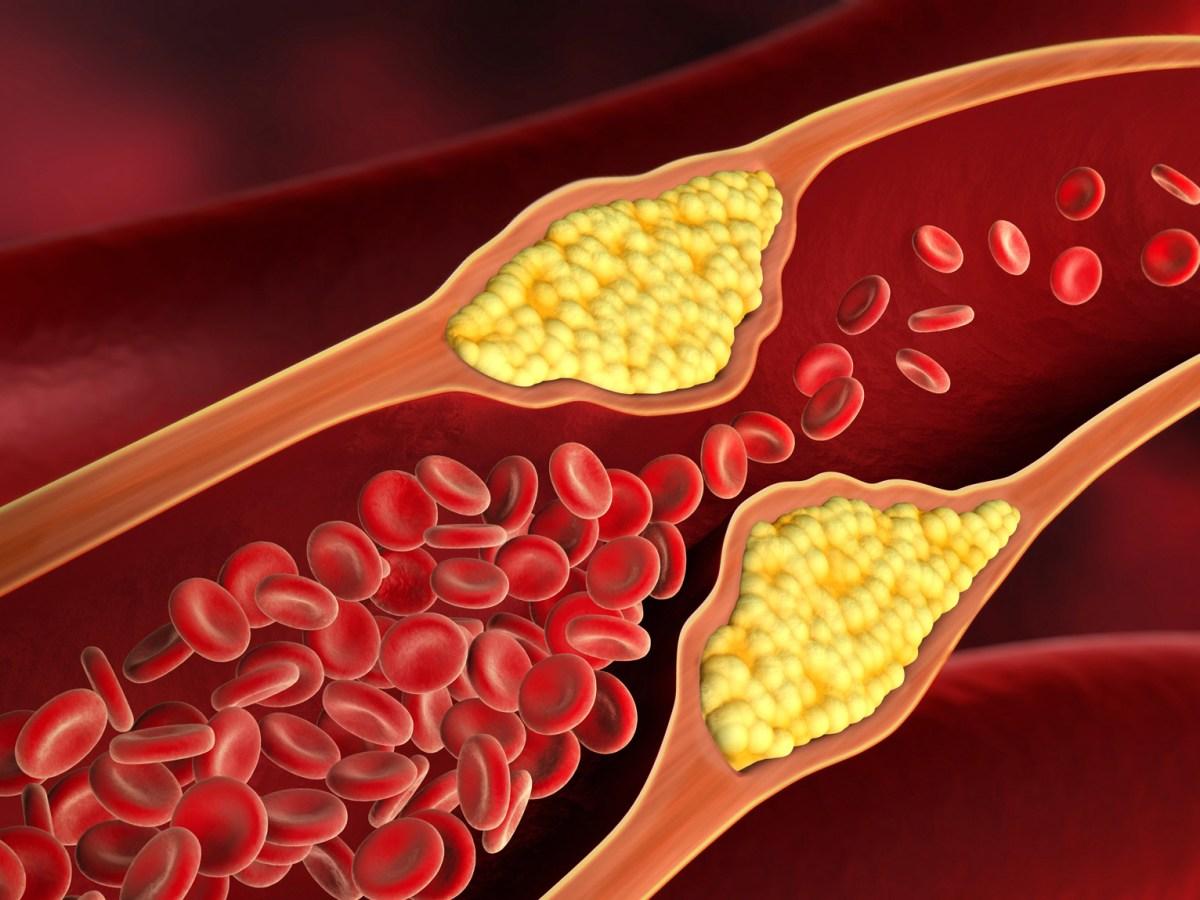 cholesterol - «Леквио»: новейшее лекарство от «очень плохого» холестерина